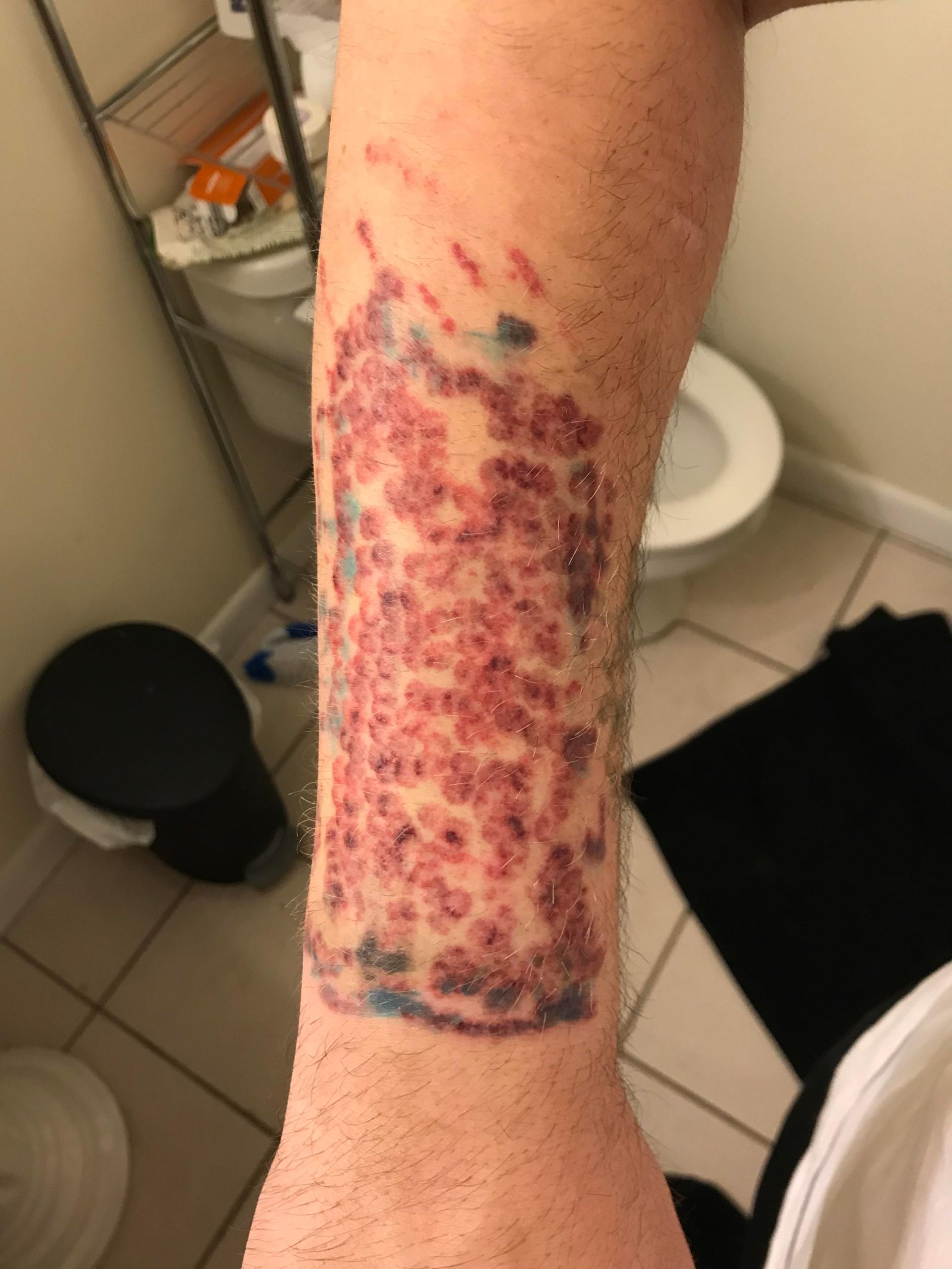 Laser tattoo removal : HadToHurt
