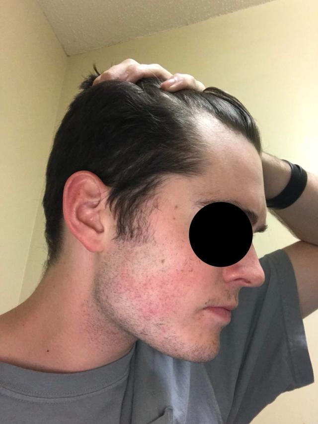 my temples have receded pretty far. what hairstyle would