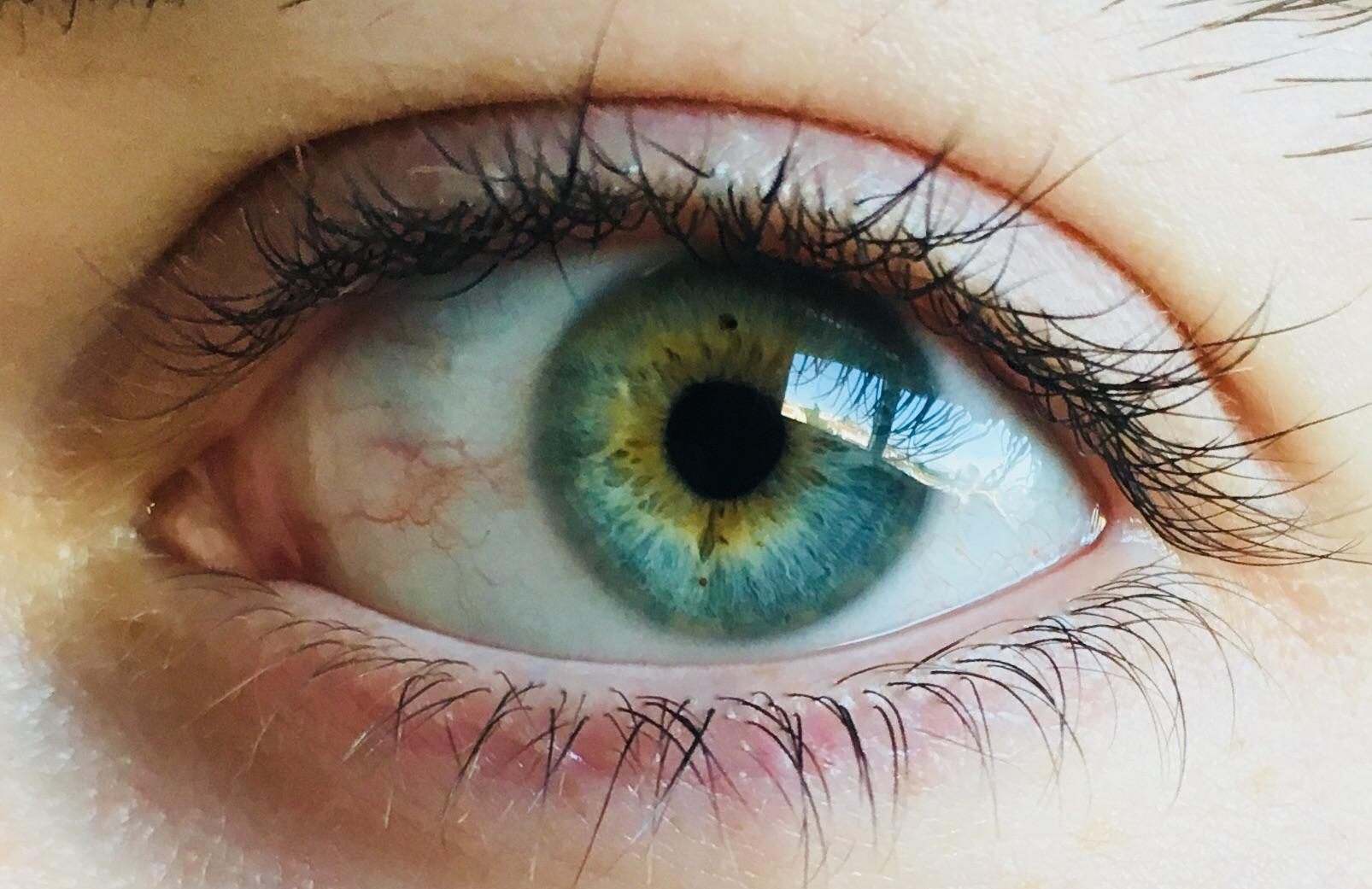 My Blueish Greenish Yellowish Eye Eyes