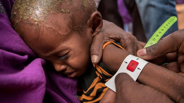 275.000 niños sufren desnutrición aguda severa en Somalia