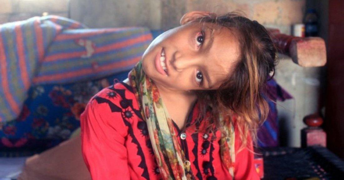n3.jpg?resize=1200,630 - Une jeune fille pakistanaise à le cou tordu à 90 degrés et sollicite l'aide des gens pour se faire opérer