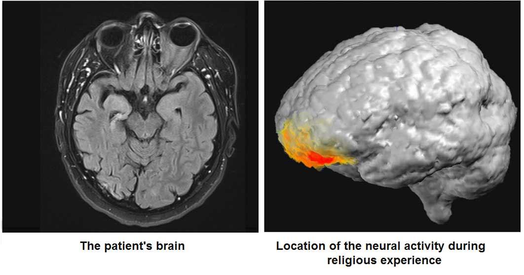 'Tanrı ile konuştuğunu' iddia eden epilepsi hastasının nöral aktiviteleri bilimsel araştırma olarak yayımlandı