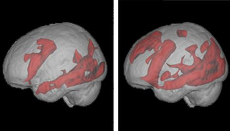 Functional MRI brain scans show neural activity (red) in a volunteer reading, left, and searching Google, right.