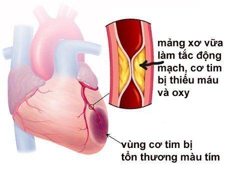 Bệnh nhồi máu cơ tim cấp