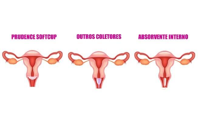 Veja a posição do novo coletor Softcup na vagina,