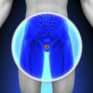 Sintomas do câncer de próstata são em sua maioria problemas urinários
