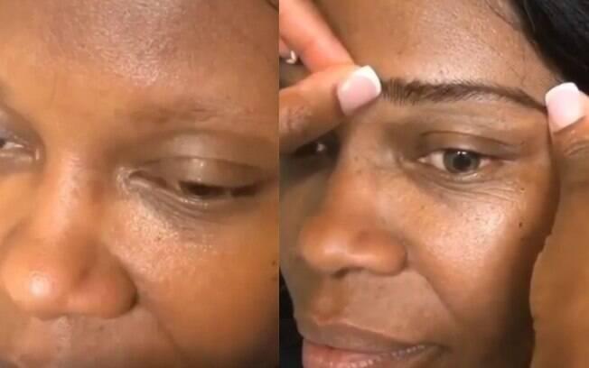 Próteses de sobrancelhas podem ser opção para mulheres e homens que acabaram perdendo pelos por problemas de saúde