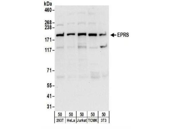 anti-EPRS 抗体 | ABIN4308796 Product No.