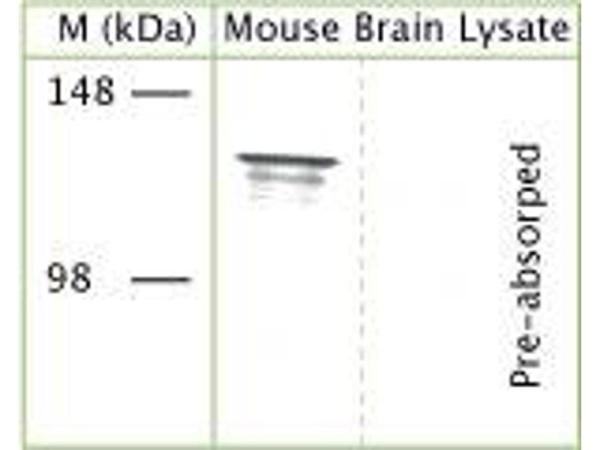 anti-TRPA1 antibody (AA 1050-1120) | Product No. ABIN351100