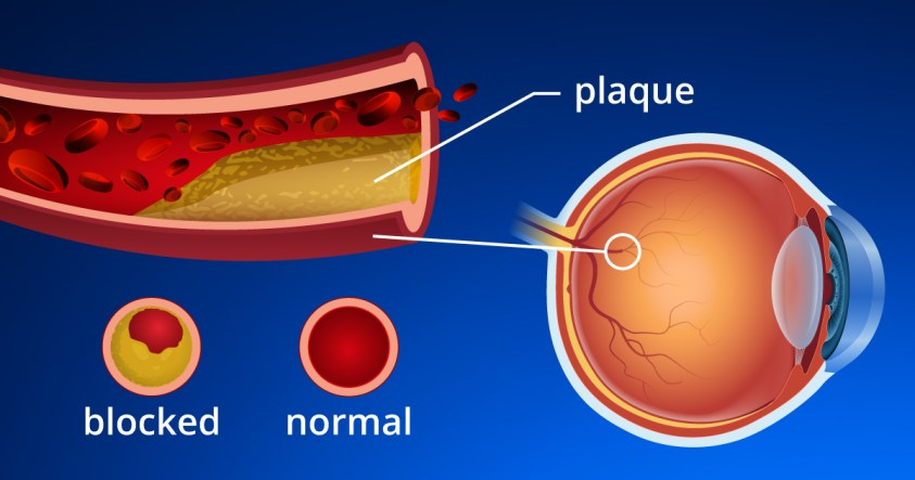 Eye Strokes - Retinal Artery and Retinal Vein Occlusions