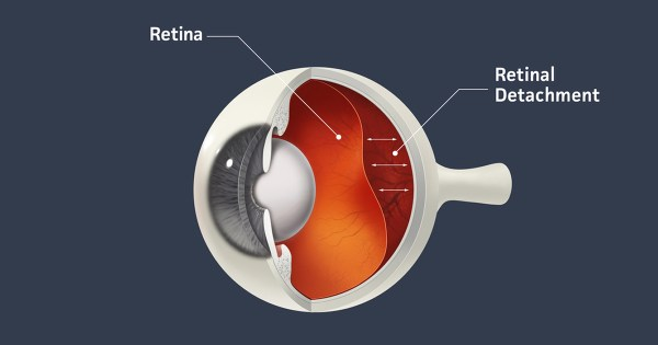 Detached Retina, also Retinal Detachment - AllAboutVision.com