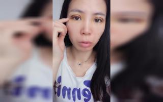 【胆小勿入!!!】九院肿眼泡双眼皮全切手术拆开纱布第三天!!!开始发黄!!!!