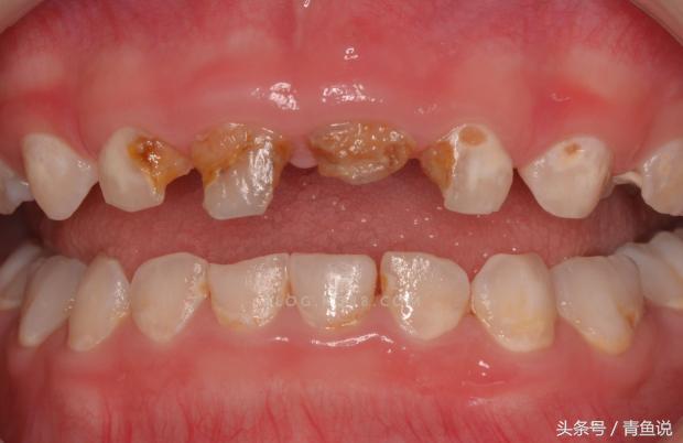 還不知道?乳牙健康對於日後恆牙很重要!千萬不要讓孩子蛀牙了 - 每日頭條