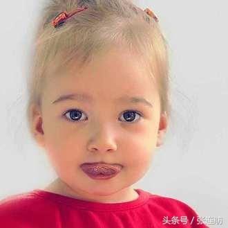 兒童抽動癥病因或與微量元素有關 - 每日頭條