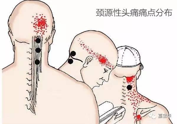 頭痛等於感冒?這些頭痛別當感冒治療哦! - 每日頭條