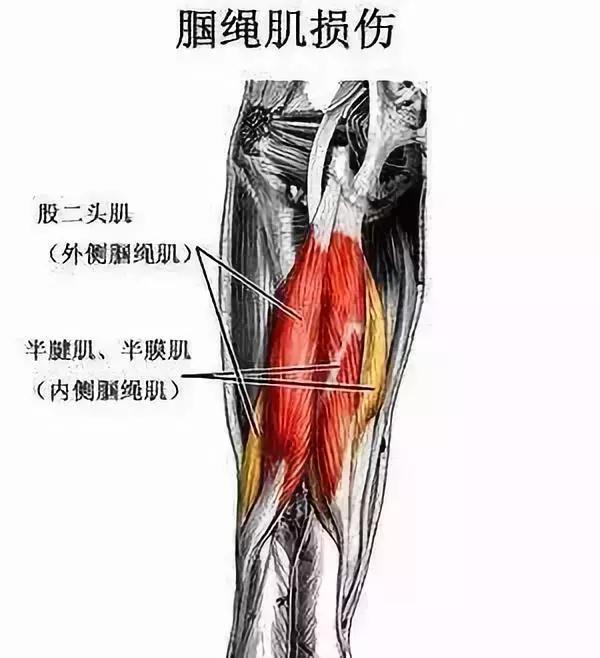 造成膝蓋後側疼痛的2個重要原因,和6組簡單的康復訓練! - 每日頭條