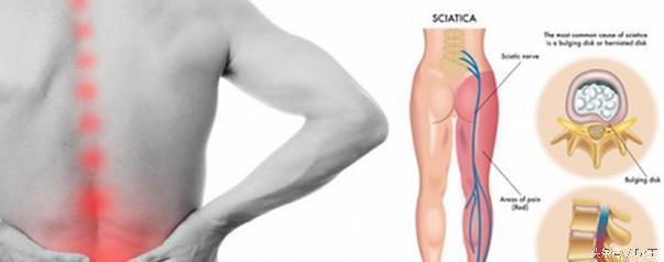 腰椎間盤突出壓迫坐骨神經痛該如何治療?這五點得注意 - 每日頭條