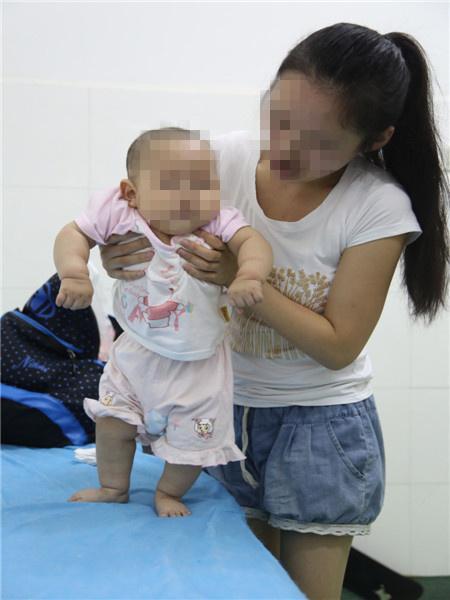 腦癱寶寶身體有哪些明顯的異常表現呢? - 每日頭條