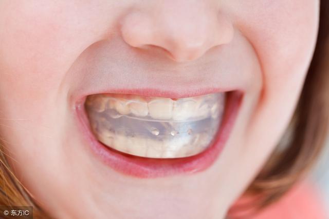 是不是年紀越小矯正牙齒越好?什麼時候戴牙套? - 每日頭條