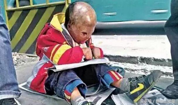 人販子毫無人性摧殘孩子 你碰見人販子誘拐兒童你會解救嗎? - 每日頭條