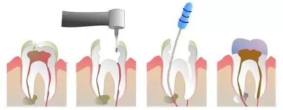 做了根管治療之後,您的牙齒還能用多久? - 每日頭條