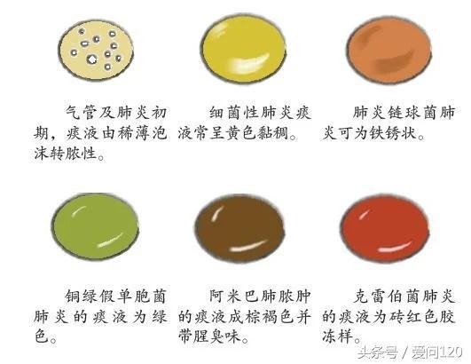 看9種痰的顏色可以辨別得了什麼肺部疾病! - 每日頭條