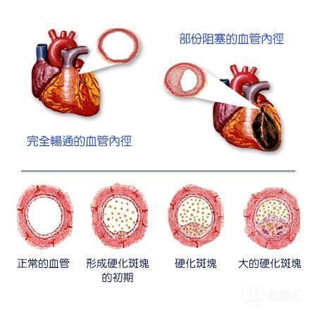 冠心病患者心臟支架術後如何服藥? - 每日頭條