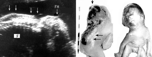 明明白白做超聲25-5:胎兒神經管缺陷—脊柱裂 - 每日頭條