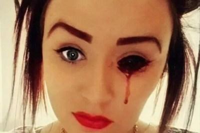 Selfie with eye bleeding