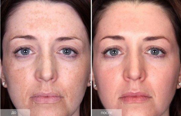 Химический пилинг лица - отзывы, фото до и после, рецепты ...