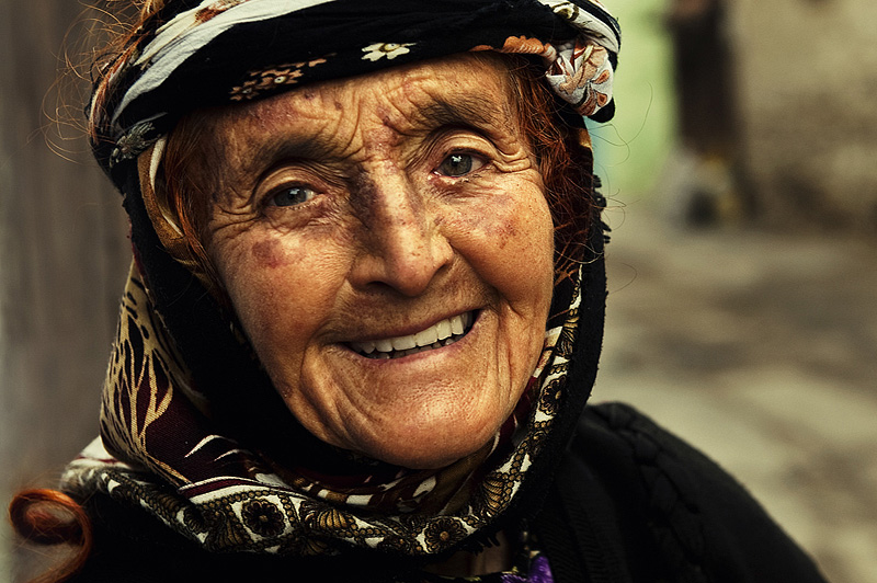 Smile, A Photo From Manisa, Aegean