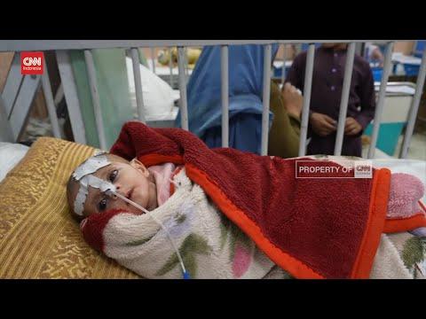 Kelaparan dan Kurang Gizi Ancam Anak Anak Afganistan