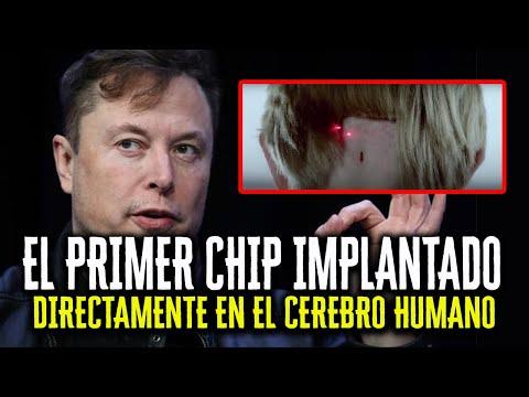 """""""Neuralink puede ser una Tragedia para la Humanidad"""" - EL PRIMER CHIP IMPLANTADO POR ELON MUSK"""