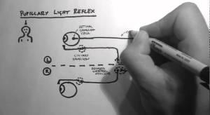 Reflexes 2  Pupillary Light Reflex  YouTube