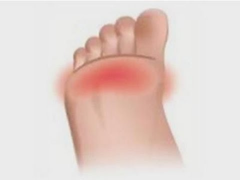 How to relieve pain in the balls of your feet - YouTube