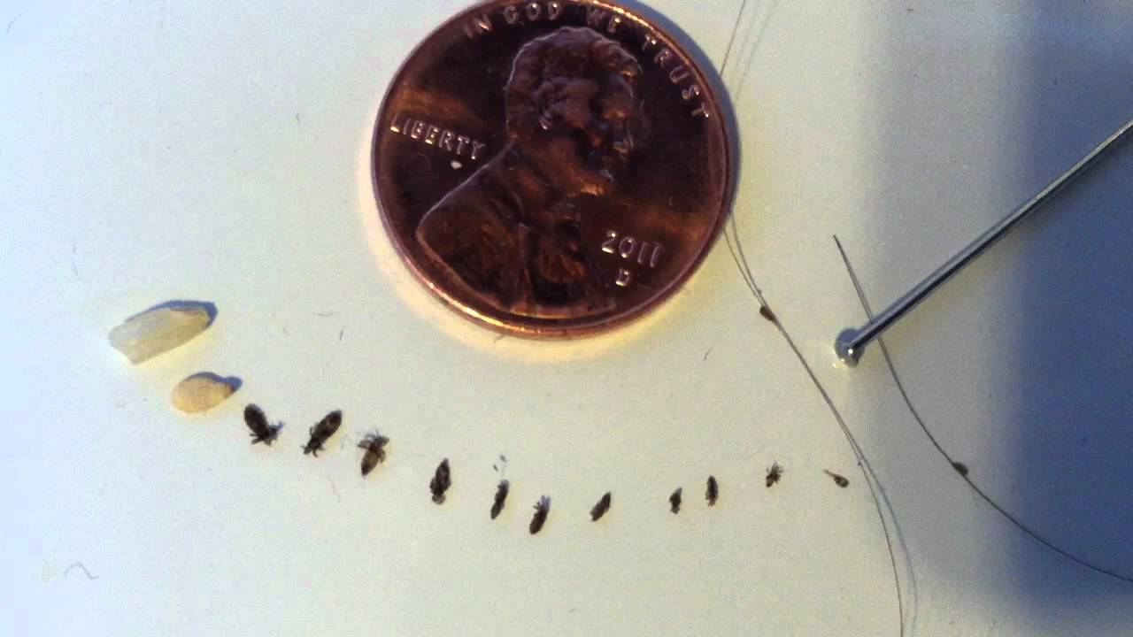 Lice And Nit Identification After Removal YouTube