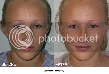 plastic surgery orange county