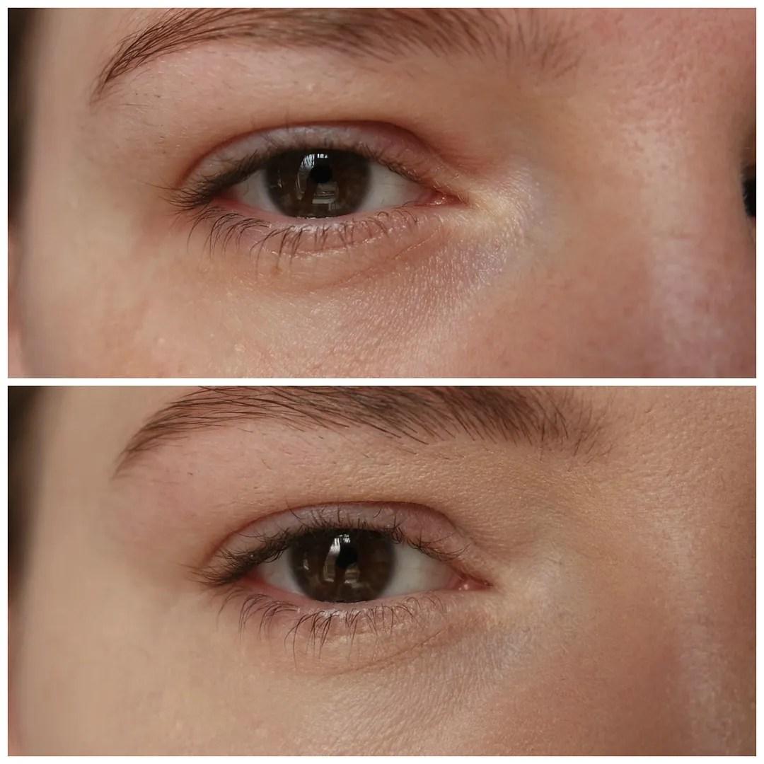 kat von d lock-it concealer crème review swatch light neutral 5 fair skin dry skin dark circles