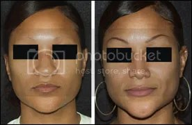 ethnic rhinoplasty houston