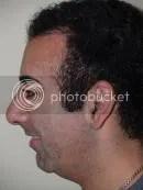 nose job reviews