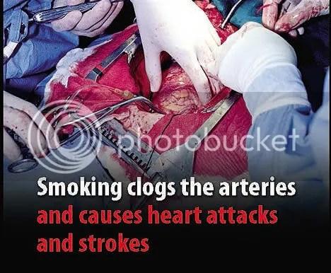 Cigarette pack in Britain