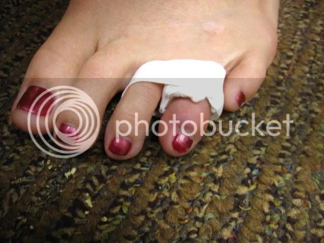 Dani's hurt toe
