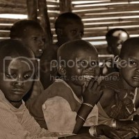 PERSECUTION OF ALBINISM IN TANZANIA