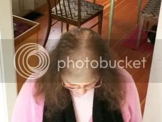 Meowser's bald spot
