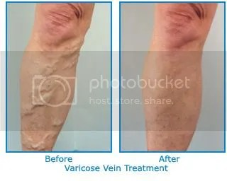 pregnancy varicose veins stockings