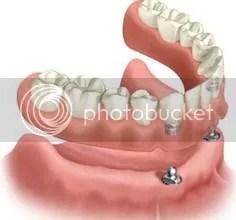 dental implants west palm beach