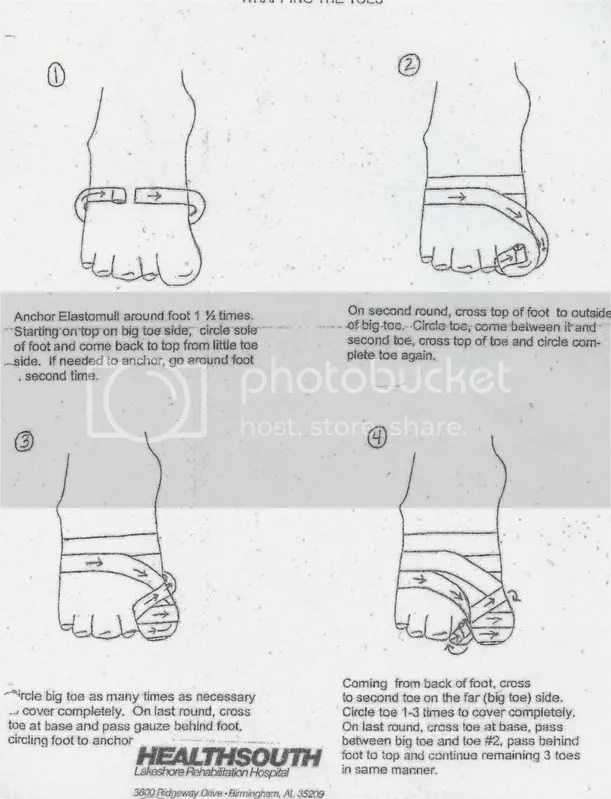 Wrapping the Toes Lymphedema Illustrated