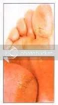 Trda, suha koža na stopalih