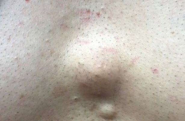 The dermatologist removed the pus-filled cyst