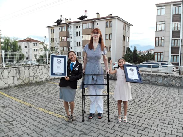 The Guinness Book of Records called Ms Gelgi an 'inspiration' to others with rare conditions